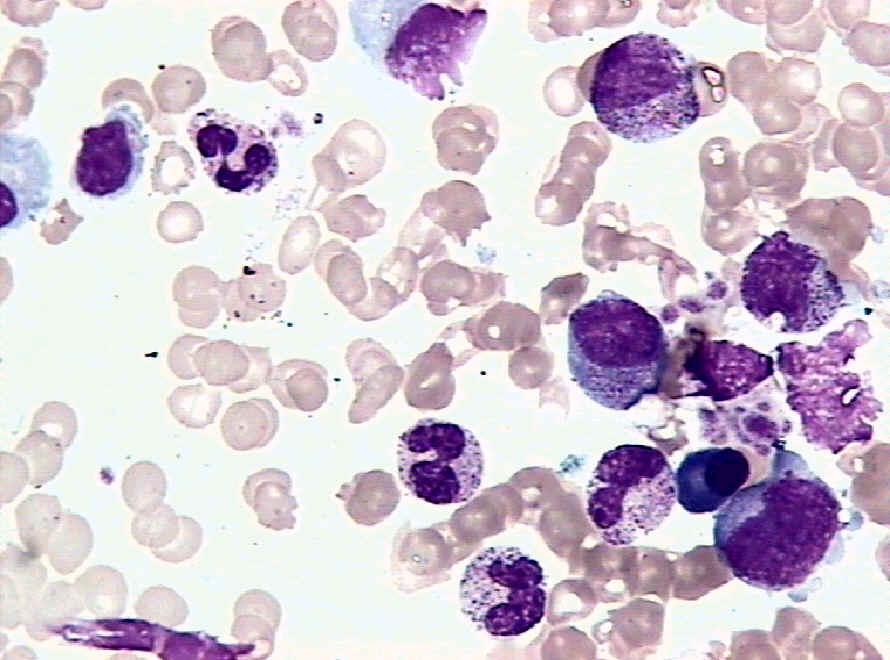 甲状腺细胞图片 手绘图